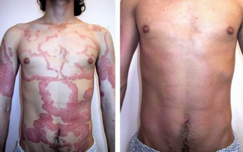 Before and after: A miasm leading to a skin disease, and after treatment with homeopathy it cleared up